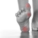 Le pied diabétique : qu'est-ce que c'est ?